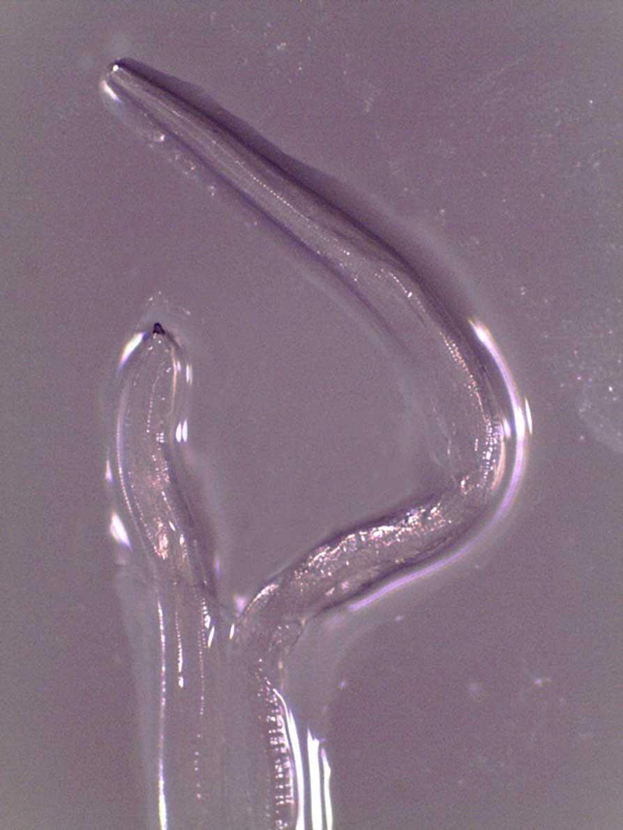 02 - 【寄生虫】目から寄生虫14匹を摘出!初の感染例